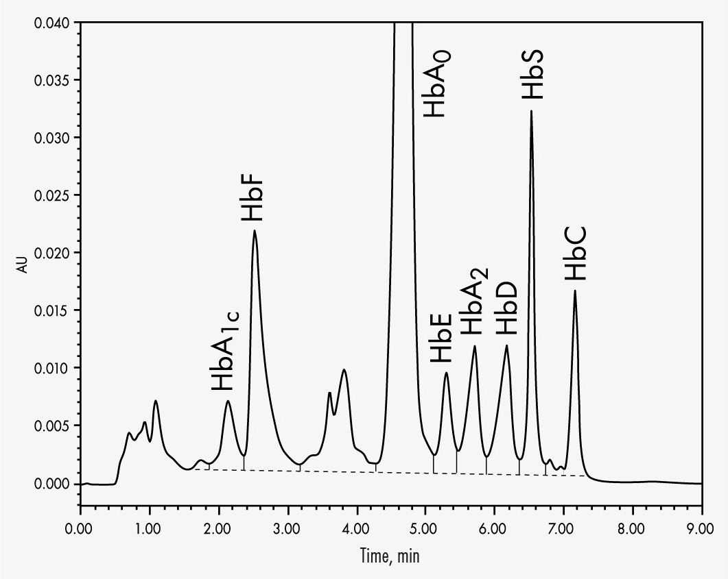 Hemoglobin Variants Hplc